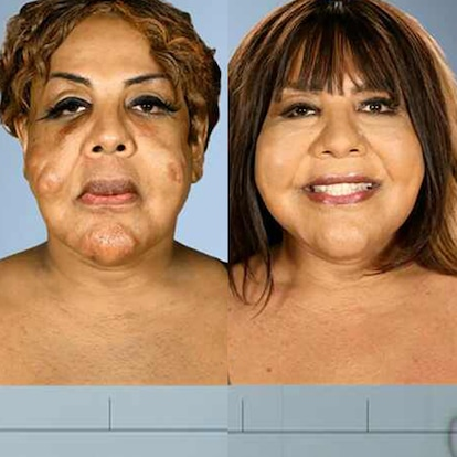 <i>Botched</i> Patients Before and After: Shocking Transformations!