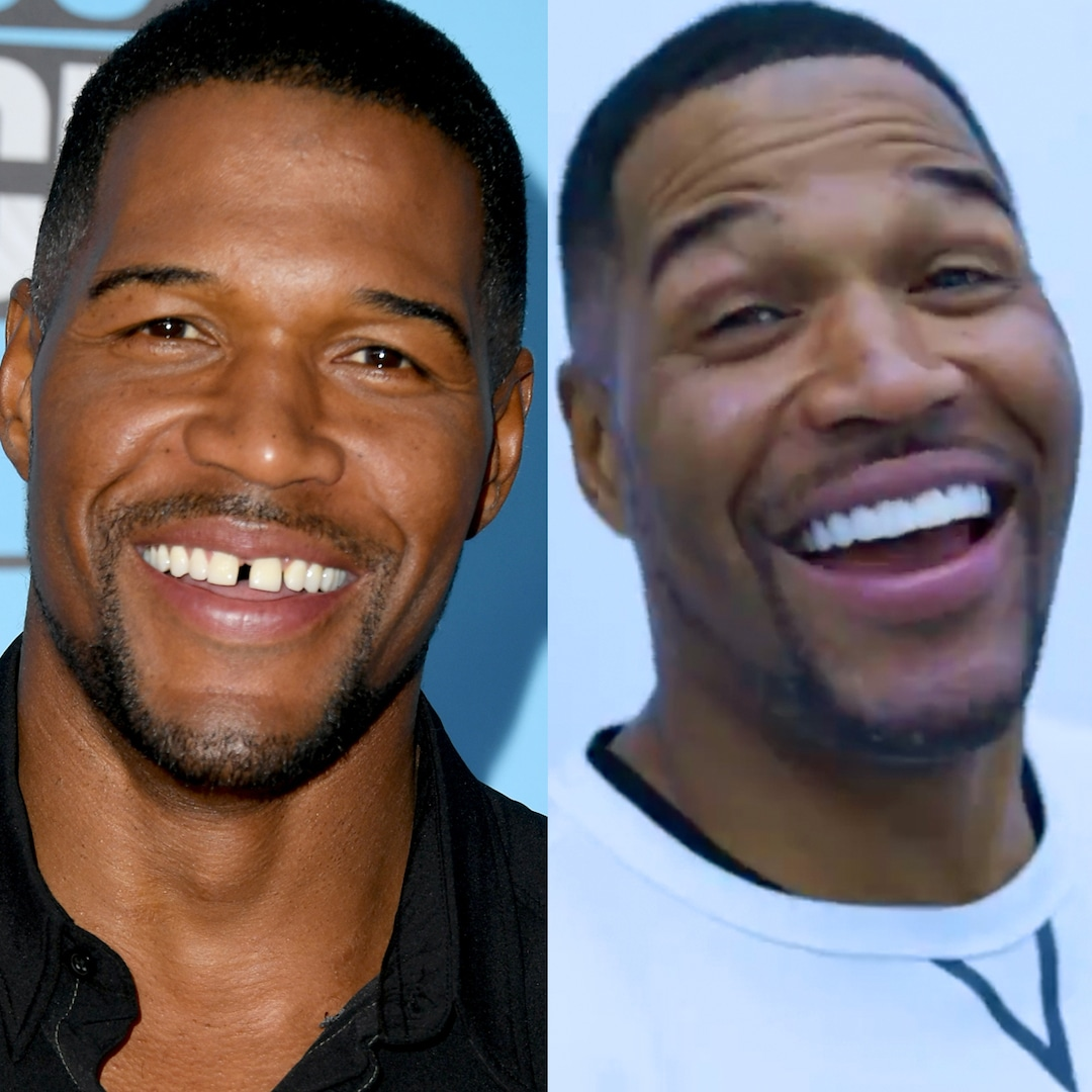 Michael Strahan Sets the Record Straight on Permanently Closing His Tooth Gap
