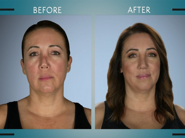 Botched, Dr. Terry Dubrow, Patient, Dr. Paul Nassif