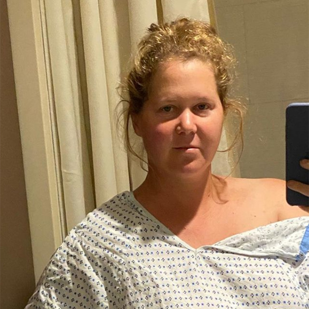 Amy Schumer Says She Had Her Uterus and Appendix Removed During Endometriosis Surgery thumbnail