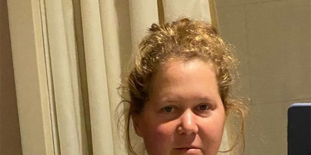 Amy Schumer Says She Had Her Uterus and Appendix Removed During Endometriosis Surgery - E! Online.jpg